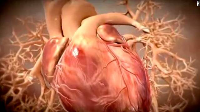 Symptoms of a heart attack may not always resemble those seen on TV, an expert says.