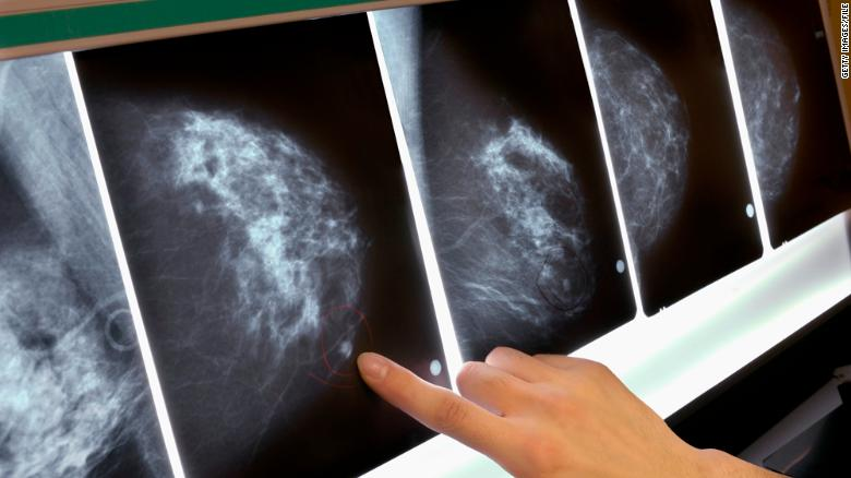 New guidelines on breast cancer screening