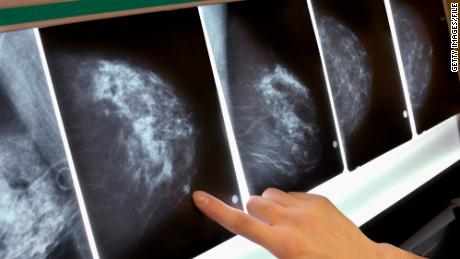 Double mastectomies for breast cancer tripled in 10 years
