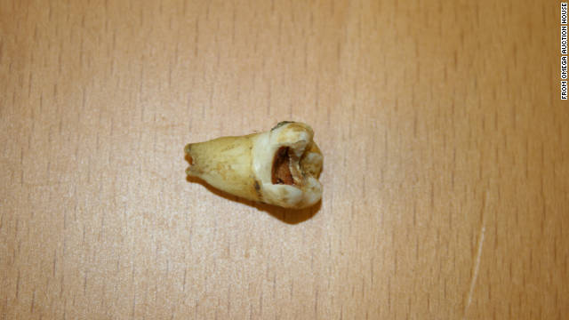 A molar said to have belonged to the late John Lennon will be going up for auction.