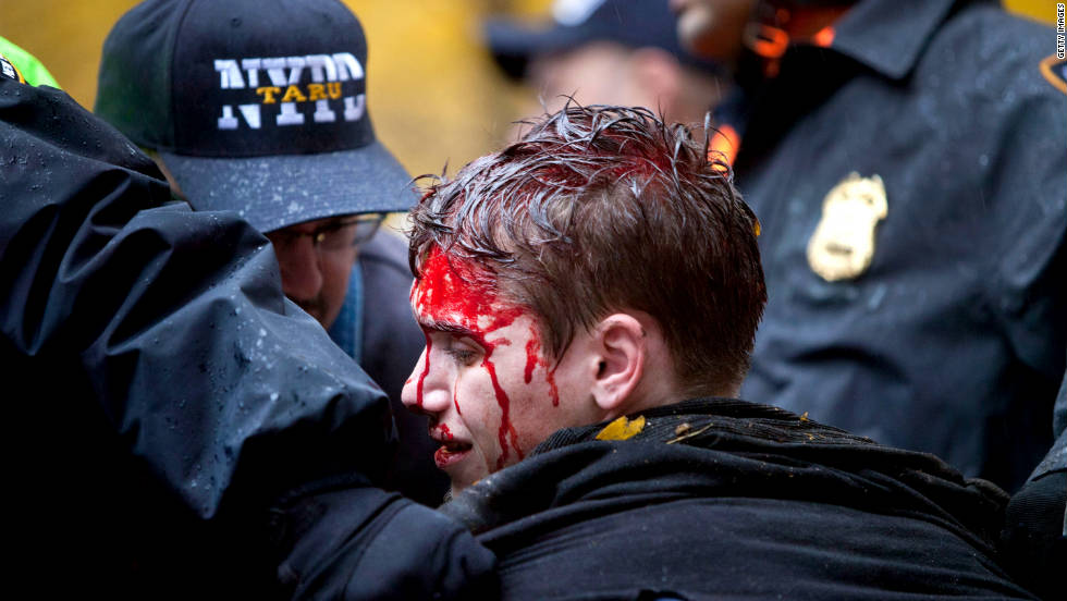 A young man is seen with blood on his face after a confrontation with police in Zuccotti Park. It's unclear how many demonstrators have been injured during the clashes.