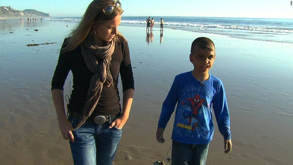 Youssif walks along a California beach in 2011 with CNN's Arwa Damon, who first told the boy's story in 2007.