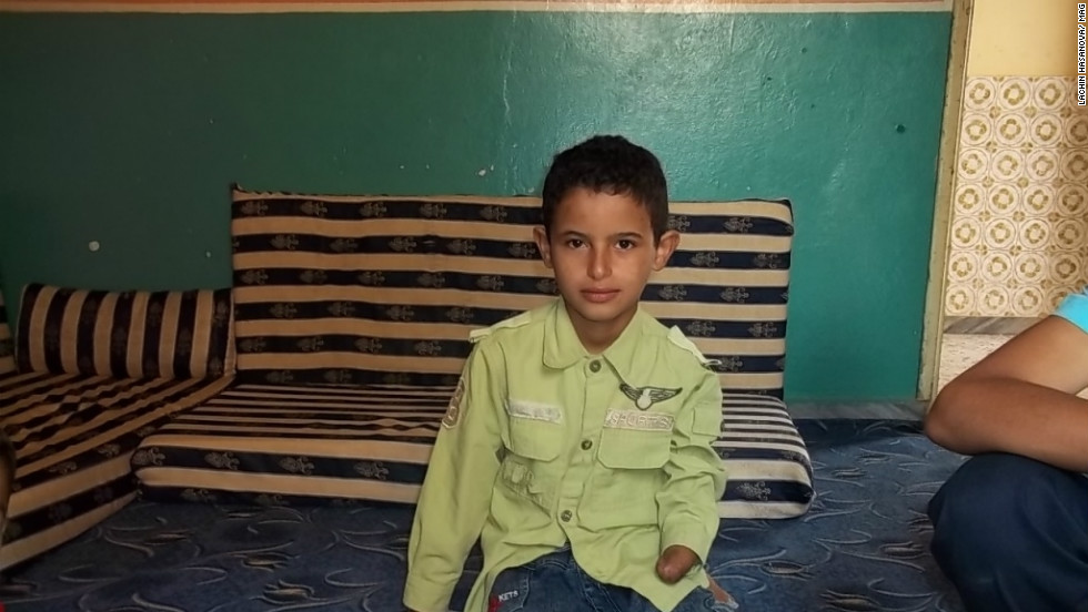 Nine-year-old Mahmood lost a hand after hitting an anti-aircraft machine gun bullet with a stone to see what was inside.