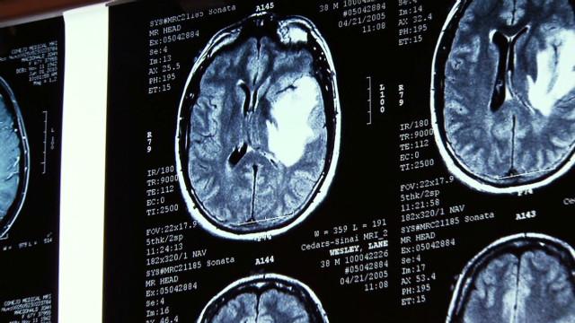 pkg gupta top 2011 medical stories_00015102