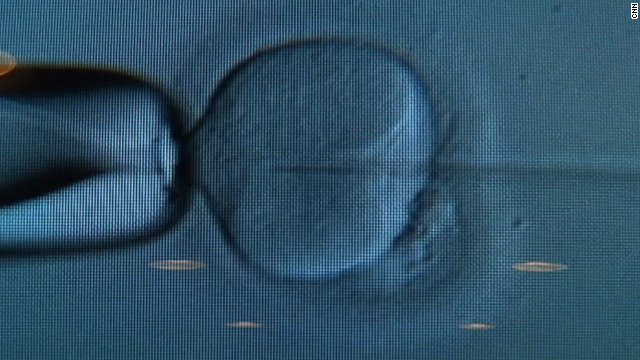British study: New IVF embryo risks