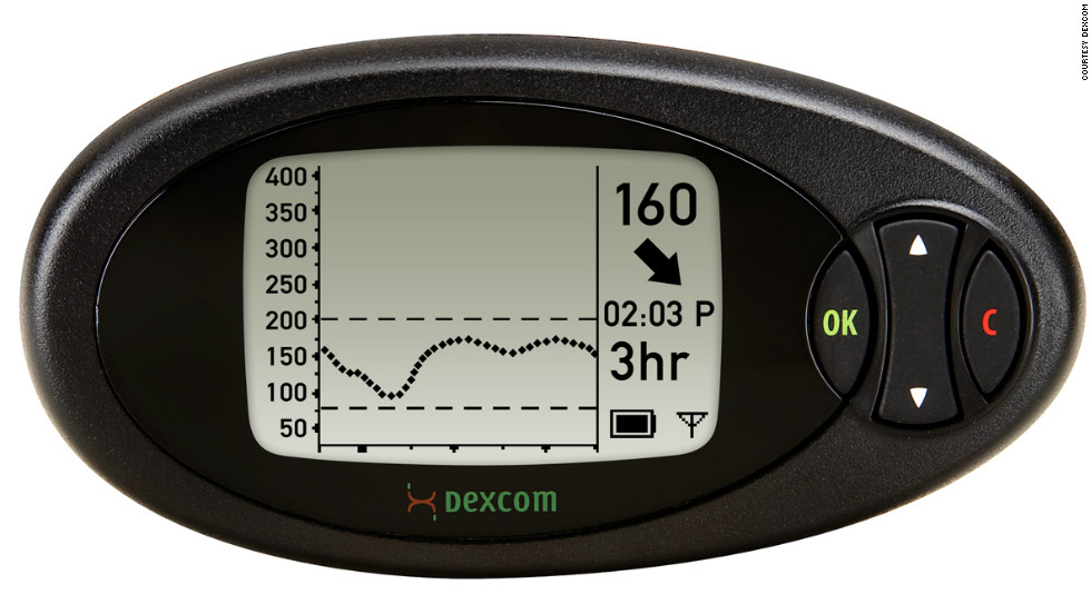 Dexcom Seven Plus Continuous Glucose Monitoring system features a sensor implanted under the skin to provide a continuous reading of glucose levels. The sensor transmits blood sugar measurements to a cellphone-sized receiver every five minutes.