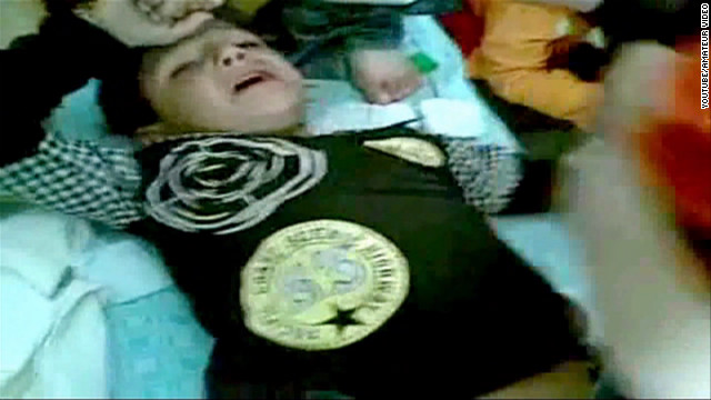 Video shows kids hurt by Homs shelling