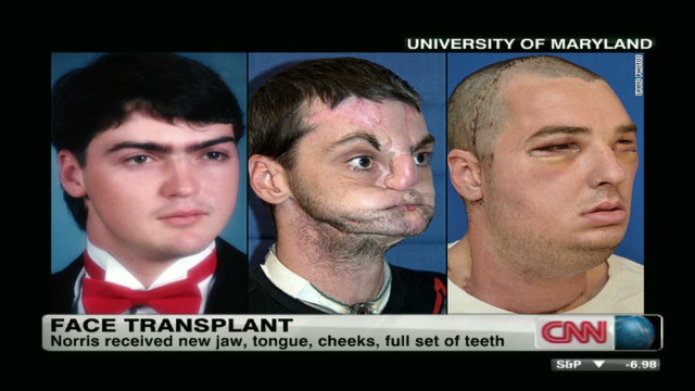 Groundbreaking face transplant surgery