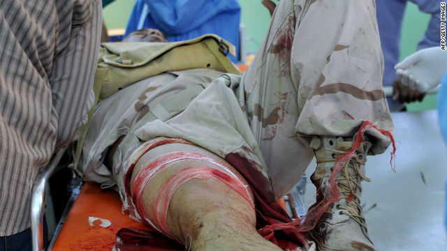An injured soldier from the ruling National Transitional Council lies on a stretcher on March 30 at a hospital in Sabha.