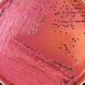 Salmonella bacteria petri dish