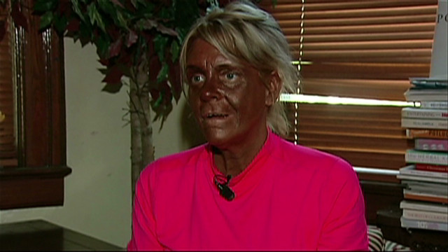 Police: Mom put daughter in tanning bed