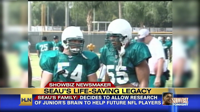 SBT Junior Seau's brain_00010508