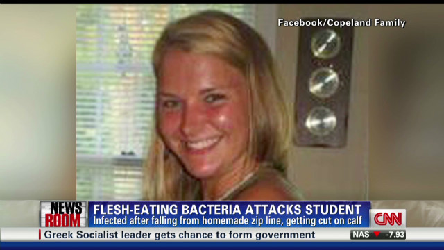 exp Cohen and woman infected with flesh-eating bacteria_00001701