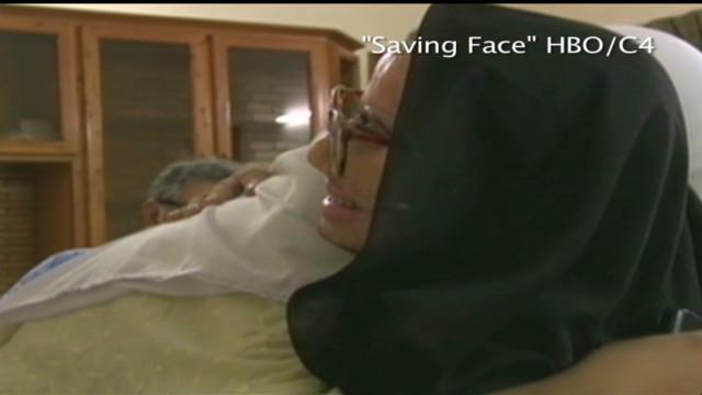 ctw plastic surgeon dr jawad on acid attack survivors_00050723
