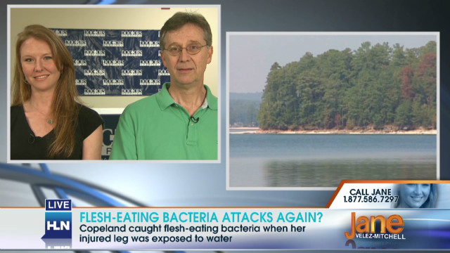 Flesh-eating bacteria attacks again?