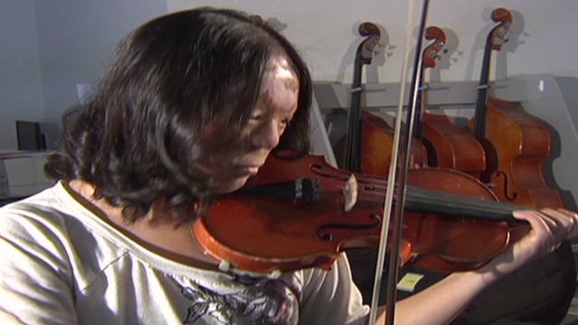 Violin prodigy overcomes childhood burns