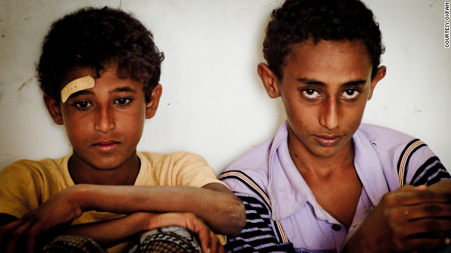 Yemen on brink of hunger catastrophe