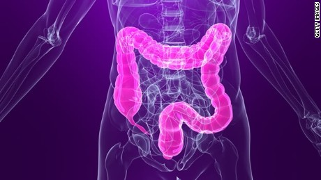 Be kind to your colon with less-invasive screenings, panel advises