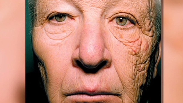 Trucker says sun did THIS to his face