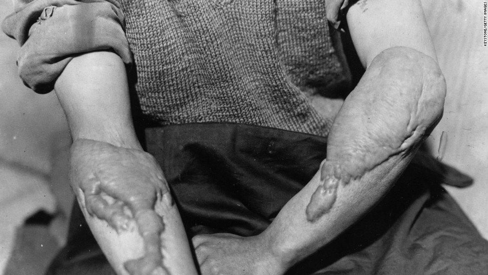 A victim of the American atomic bombing of Hiroshima, Japan, on August 6, 1945, shows the burns on his arms. The bombing of Hiroshima and Nagasaki effectively ended the Second World War.