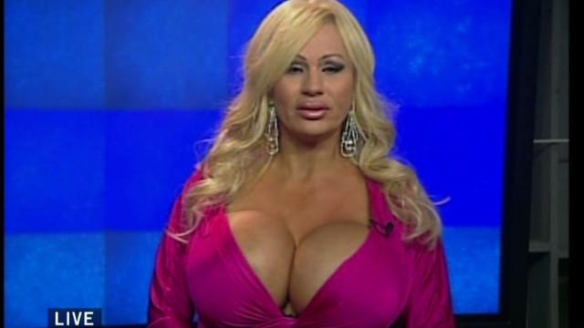 Drew woman addicted implant surgeries_00001219