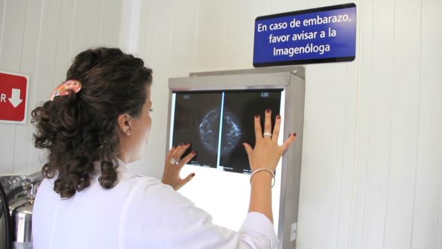 sebastian castro mamografia_00014727