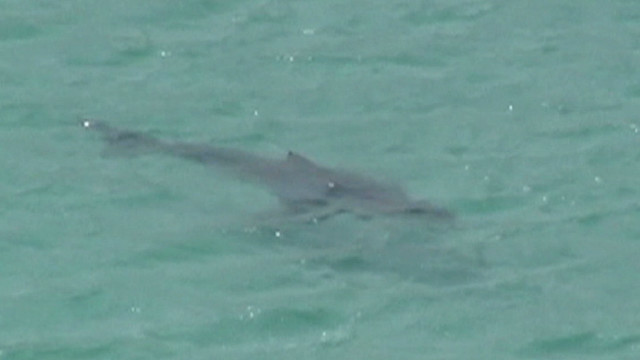 Shark attack victim speaks