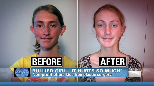Bullied kids get free plastic surgery