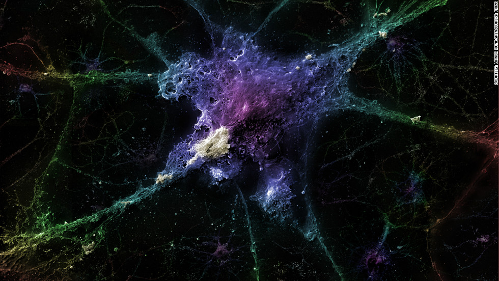 A neuron with a beta-amyloyd plaque, which is thought to be the fundamental cause of Alzheimer's disease. The sample was platinum-coated and magnified 3,200 times. By Linnea Rundgren.