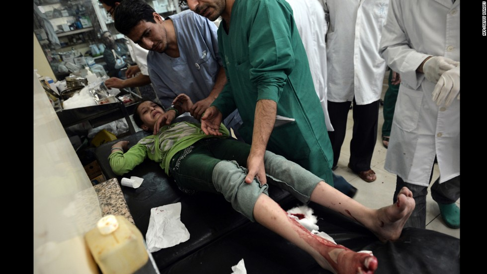 Doctors treat a wounded girl at a hospital in Aleppo, Syria's largest city, on Tuesday.