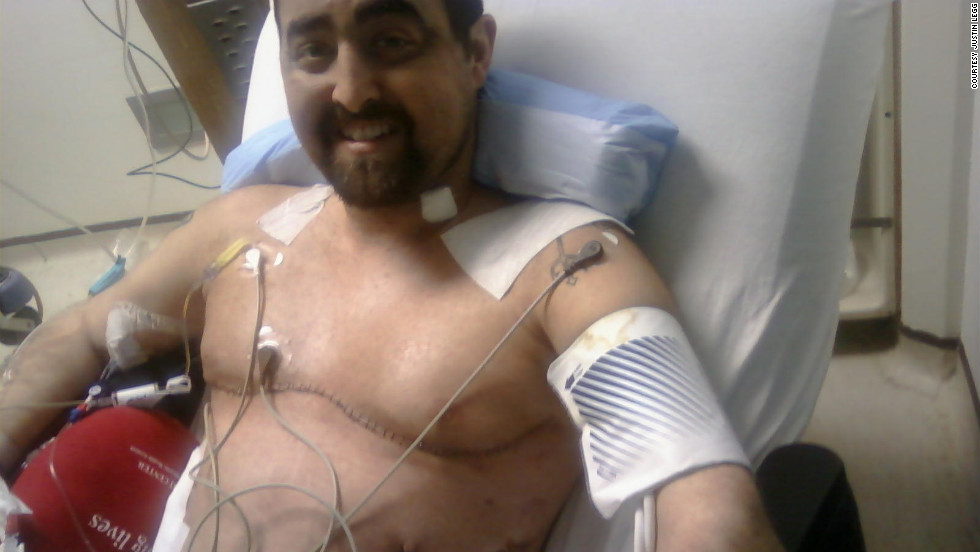 """Justin Legg received a double lung transplant in July 2010. """"I remember waiting... to take that first breath,"""" Legg says. """"I just took one big deep breath and (said), 'Oh, man, this is awesome.'"""""""