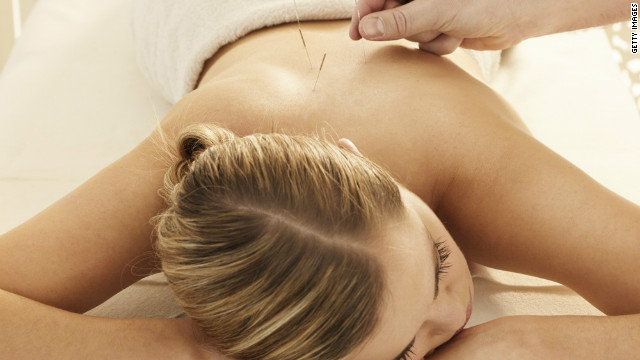 Acupuncture works, one way or another