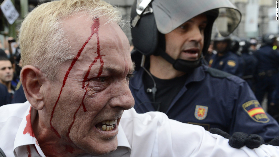 A riot police officer stands behind an injured protester after clashes. Demonstrators said police shot into the crowd with rubber bullets; police wouldn't comment.