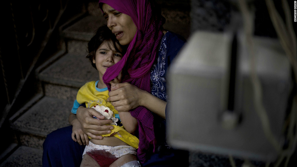 A mother holds her wounded daughter as she waits for treatment at the Dar al-Shifa hospital in the northern city of Aleppo, as fighting in Syria's second largest city continues.