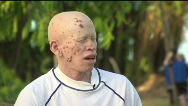Albinism is a genetic condition that leads to little or no pigment in the eyes, skin and hair.