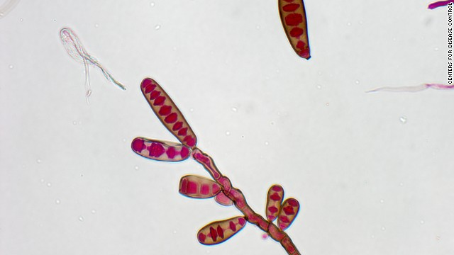The fungus Exserohilum has been implicated in the current outbreak of fungal meningitis.