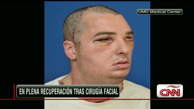 facial transplant evolution_00000709