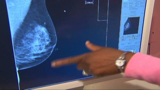 hauser us mammograms on wheels_00004908