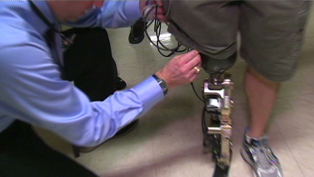 2012: Bionic leg propels man up 103 flights