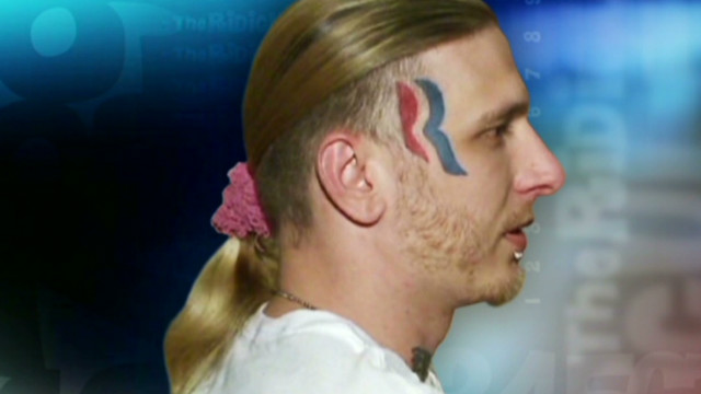 ac ridiculist face tattoo to be removed_00022817