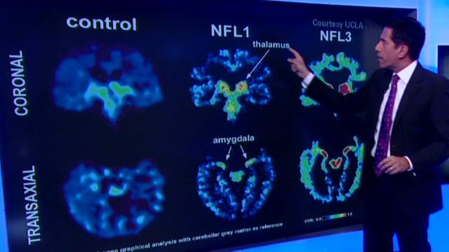 Study: Scan may detect brain disease