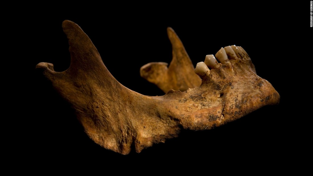 The lower jaw shows a cut mark caused by a knife or dagger. The archaeologists say the wounds to Richard's head could have been what killed him.