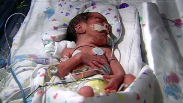 Woman gives birth to two sets of twins