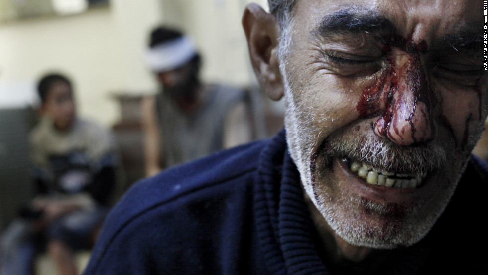 A man cries while being treated in a local hospital in a rebel-controlled area of Aleppo on October 31, 2012.