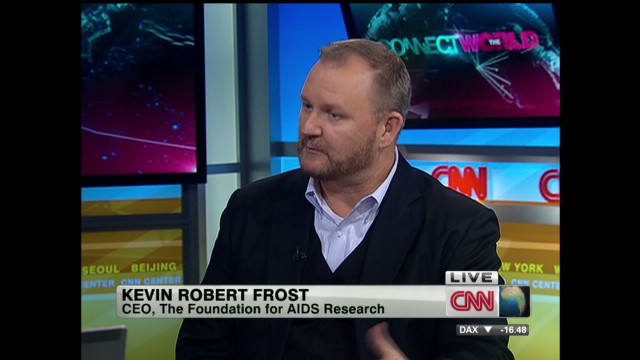 "AmfAR CEO discusses toddler's HIV ""cure"""