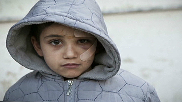 Image result for syrian child