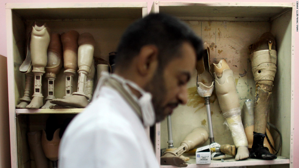 A technician works on a prosthetic at a factory in Baghdad on December 13, 2011. Iraqis have faced a shortage of prosthetics due to a spike in war-related injuries over the years.