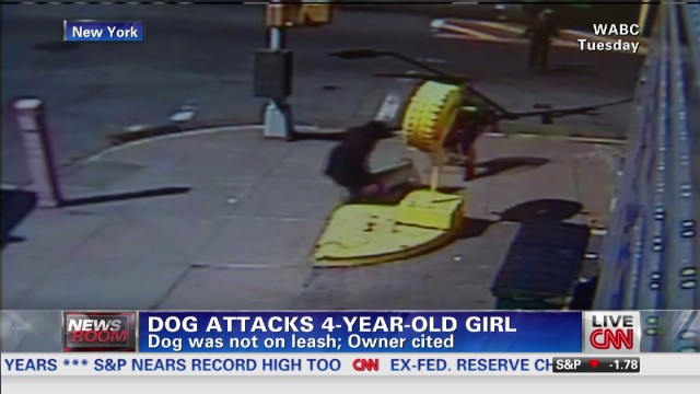 exp Dog attacks 4-year-old girl_00002001.jpg