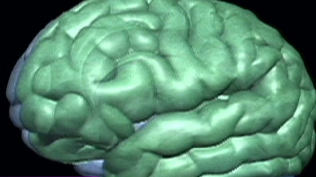 Obama wants $100M for brain research