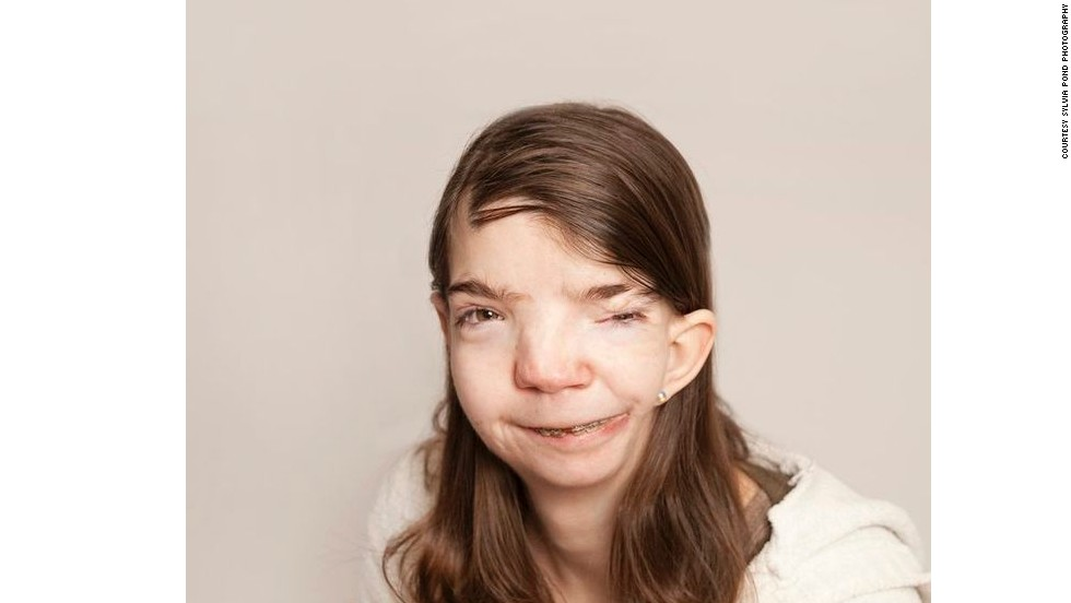Penny Loker, 31, was born with two birth defects -- hemifacial microsomia and Goldenhar Syndrome -- that left her with a disfigured face.
